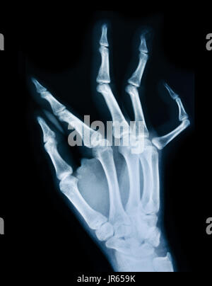 X ray of a human hand. - Stock Photo