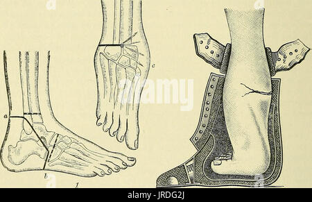 'A manual of modern surgery : an exposition of the accepted doctrines and approved operative procedures of the present - Stock Photo