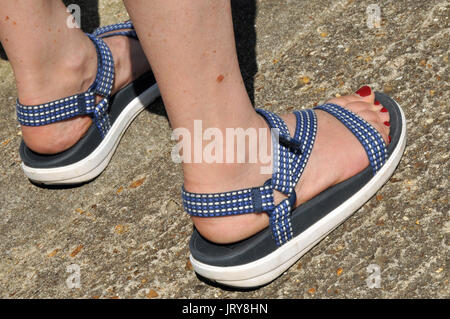 A woman wearing a pair of fit flops or summer shoes or sandals with an itchy mosquito bite on her leg. Insect bites - Stock Photo