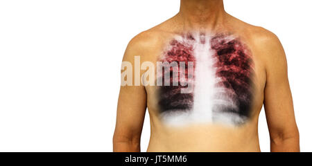 Pulmonary tuberculosis . Human chest with x-ray show interstitial infiltrate both lung due to infection . Isolated - Stock Photo