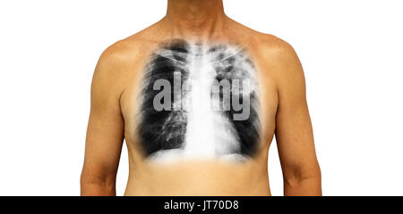 Pulmonary tuberculosis . Human chest with x-ray show patchy infiltrate left upper lung due to infection . Isolated - Stock Photo