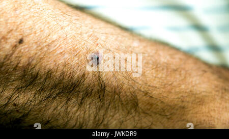 Small hematoma on the arm of an elderly man - Stock Photo
