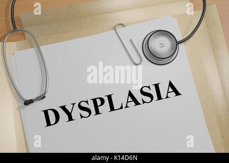 3D illustration of 'DYSPLASIA' title on a medical document - Stock Photo