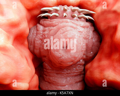 Human tapeworm infection