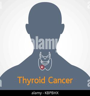 Thyroid Cancer vector icon illustration - Stock Photo