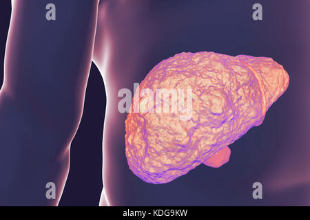 Liver with cirrhosis, computer illustration. Cirrhosis is a consequence of chronic liver disease characterized by - Stock Photo