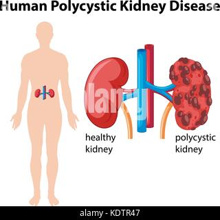 Diagram showing human polycystic kidney disease illustration stock diagram showing human polycystic kidney disease illustration stock photo ccuart Choice Image