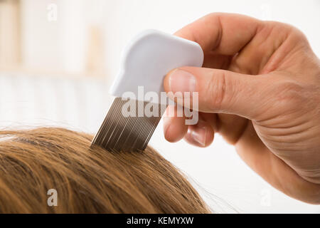 Close-up Of Person Hand Using Lice Comb On Patient's Hair - Stock Photo