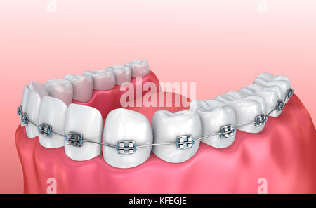 Teeth with braces isolated on white. Medically accurate 3D illustration - Stock Photo