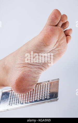 Dry heels woman close up isolated on white background - Stock Photo