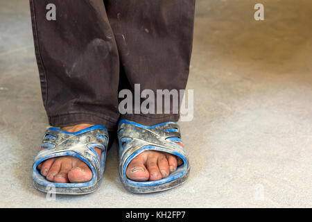 Feet of a person in old dirty clothes and shoes - Stock Photo