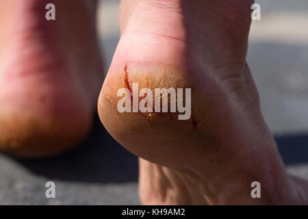 Macro photo pair of cracked heels. Male back view. Close up of crack on heel - Stock Photo