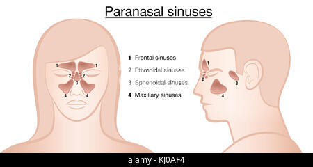 Anatomical representation of paranasal sinuses and their names - frontal, ethmoidal, sphenoidal and maxillary sinuses - Stock Photo
