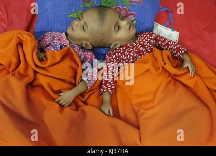 Dhaka, Bangladesh. 22nd Nov, 2017. Rabeya and Rokeya, 18 month old sister who born conjoined at head sleeping at - Stock Photo