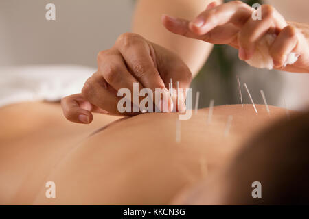 The doctor sticks needles into the girl's body on the acupuncture - close up - Stock Photo