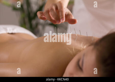 The doctor sticks needles into the girl's body on the acupuncture - Stock Photo