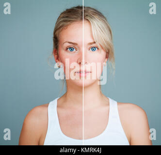 Young Model Woman with Skin Problem. Female Face Divided into two Parts one Healthy and one Unhealthy. Facial Treatment, - Stock Photo