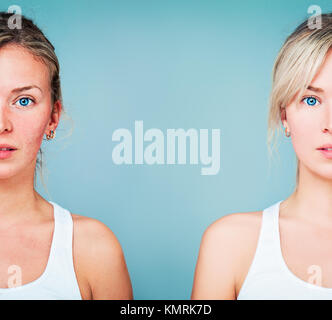 Young Woman with Perfect Skin and Skin Problem. Unhealthy and Healthy Skin After Treatment. Facial Treatment, Medicine - Stock Photo