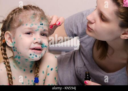 Mom misses zelenkoj sores on the face of a child suffering from chickenpox. - Stock Photo