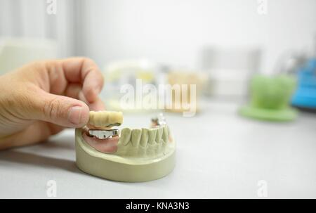 Dental technician working in dental laboratory. - Stock Photo