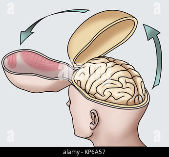 AUTOPSY ILLUSTRATION - Stock Photo