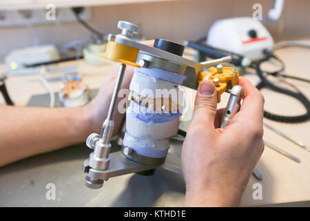 The master makes dental crowns for dentistry. Manufacture of dental crowns. - Stock Photo