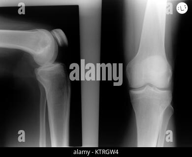 X-ray of the left knee of a man without conspicuous findings. The right image shows the knee from the front (ventral, - Stock Photo