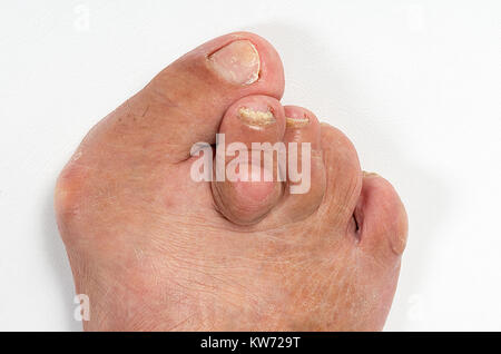 Feet of a woman with advanced stage bunion (Hallux abductus valgus) - Stock Photo