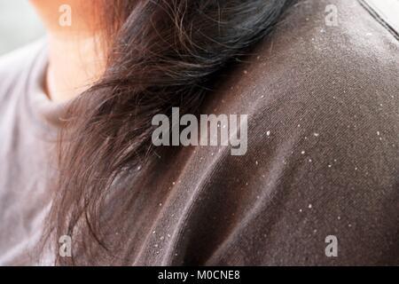 women having dandruff in the hair and shoulder - Stock Photo
