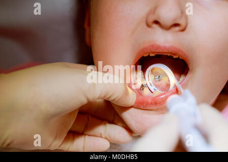 Little girl sitts in the dentist's office dentist examines the teeth - Stock Photo