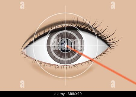 Of laser vision correction. - Stock Photo