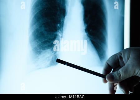 doctor checking chest x-ray film. Doctor examining a lung radiography - Stock Photo
