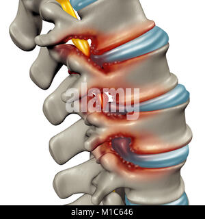 Spinal Stenosis as a degenerative illness in the human vertebrae causing compressed spine nerves medical concept - Stock Photo