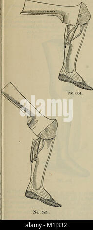 A treatise on artificial limbs with rubber hands and feet (1901) (14767133322) - Stock Photo