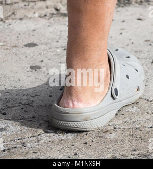 Crocs sandals. Person wearing Crocs without socks. Cracked skin on heel - Stock Photo