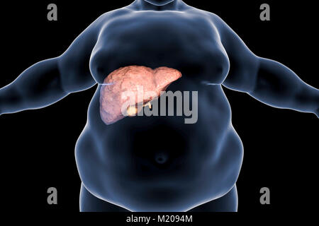 Fatty liver in obese person, conceptual illustration. Fatty liver is commonly associated with alcohol or metabolic - Stock Photo