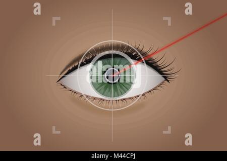 Vision correction by a laser beam. - Stock Photo