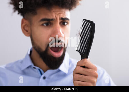 Young Man Holding Comb Looking At Hair Loss - Stock Photo