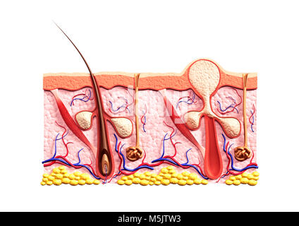 Cross section of skin showing structure of a healthy hair follicle with and sebaceous glands and a whitehead acne - Stock Photo
