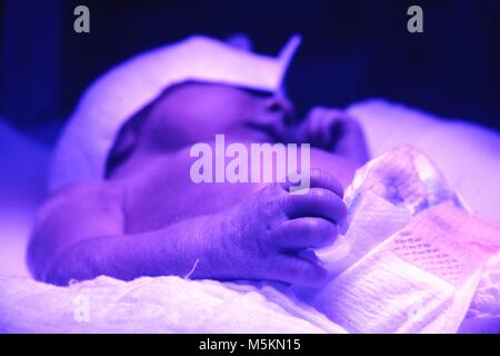 Treatment of a baby with Neonatal jaundice in a hospital - Stock Photo