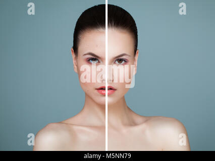 Young Model Woman with Skin Problem and Clear Skin Closeup Portrait. Unhealthy and Healthy Skin After Treatment. - Stock Photo