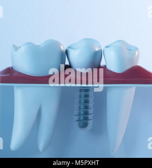 Tooth human implant. Dental concept. - Stock Photo