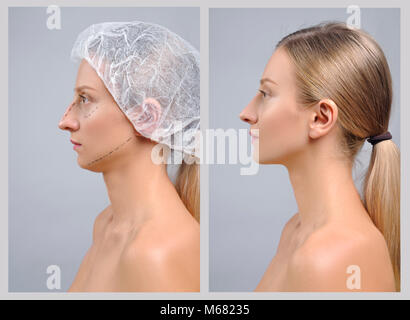 Rhinoplasty. Portrait of female face, before and after plastic surgery of the nose - Stock Photo