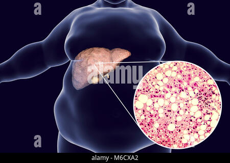 Fatty liver in obese person, illustration and micrograph. Fatty liver is commonly associated with alcohol or metabolic - Stock Photo