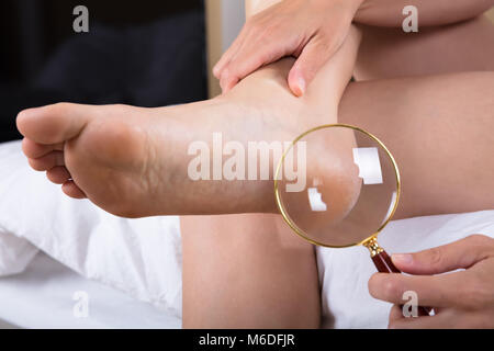 Close-up Of A Person Looking At Her Heels With Magnifying Glass - Stock Photo