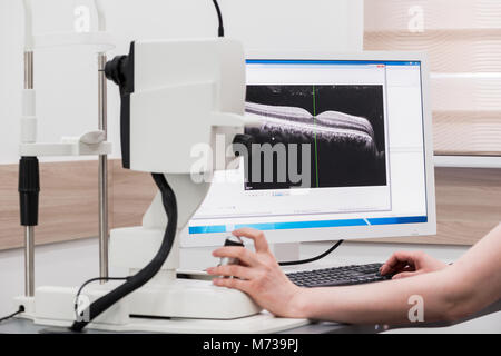 doctor oculist at work. diagnostic ophthalmologic equipment. medicine concept - Stock Photo