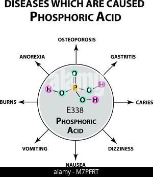 Phosphoric acid  Molecular model of the inorganic compound