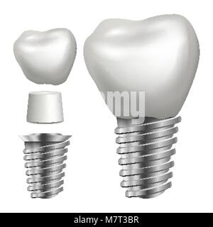 Dental Implant Vector. Side View. Graphic Design Element. Tooth Paste Poster. Realistic Isolated Illustration - Stock Photo