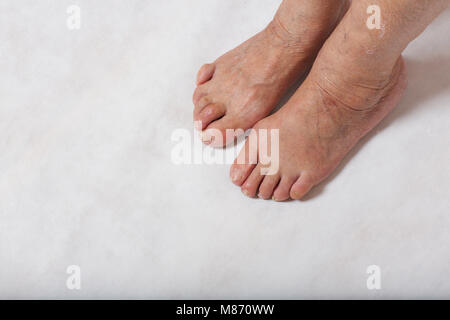 Feet of a senior woman between 70 and 80 years old - Stock Photo