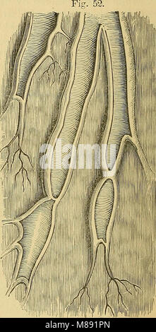 Elements of pathological anatomy (1843) (21252813432) - Stock Photo